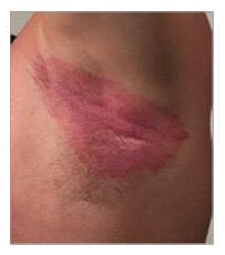 Underarm-rash-image